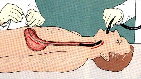 gastrostomy3