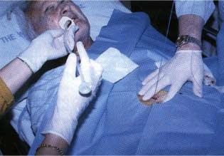 gastrostomy4