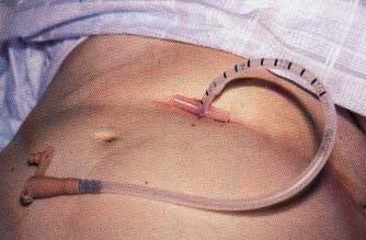 gastrostomy5