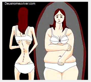 anoreksi1