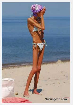 anoreksi2