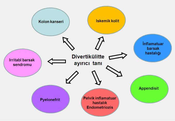 divertikul8