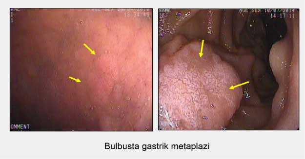 metaplazi3