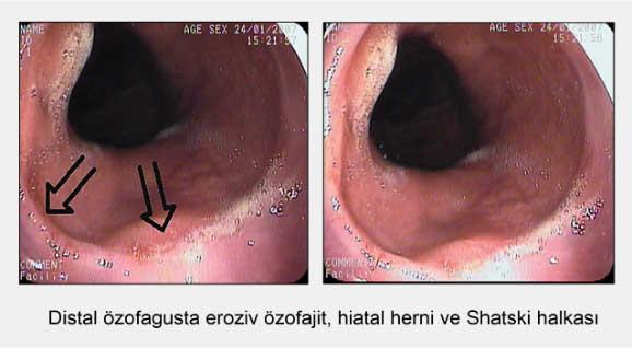 ozofagus