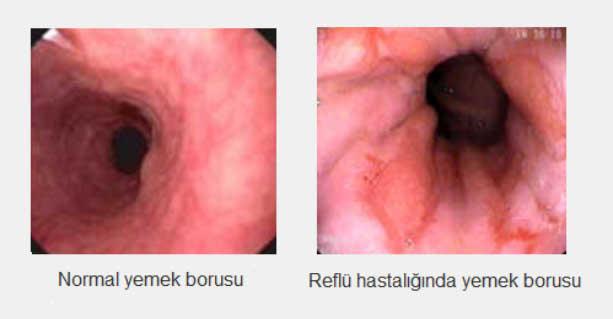 reflux24